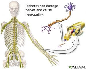 Defining Neuropathy And How It Relates To Diabetes