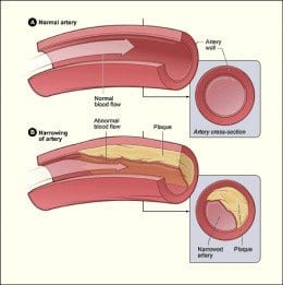 Vitamin D Helping Diabetics With Clogged Arteries